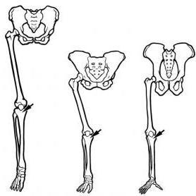 walking upright | the smithsonian institution's human origins program, Skeleton